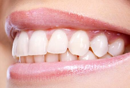 Private Cosmetic Dentist in Stoke on Trent | Diana Dental