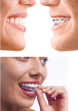 Invisalign in Stoke on Trent