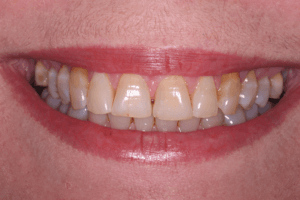 Before Teeth Whitening Female Patient