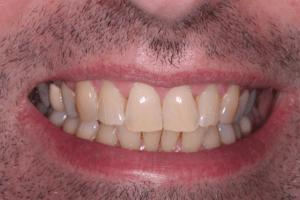 Before Teeth Whitening Male Patient