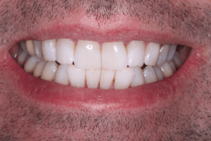 After Teeth Whitening Male Patient