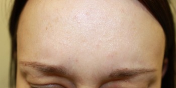 Anti-wrinkle treatment - after