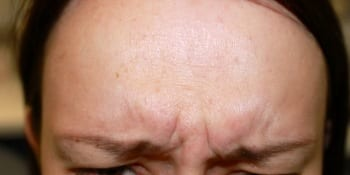 Anti-wrinkle treatment - before