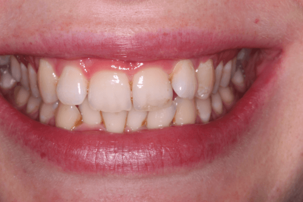 Invisalign Stoke on Trent 1