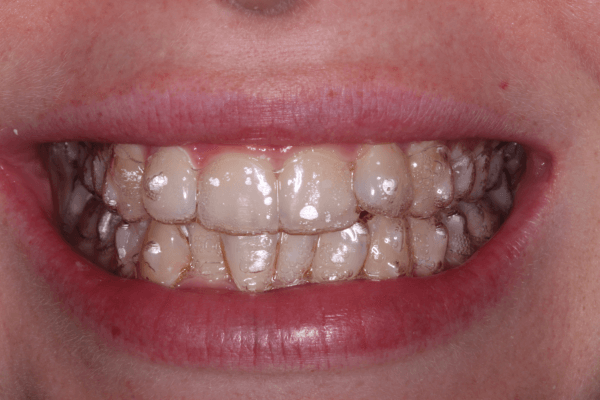 Invisalign Stoke on Trent 2