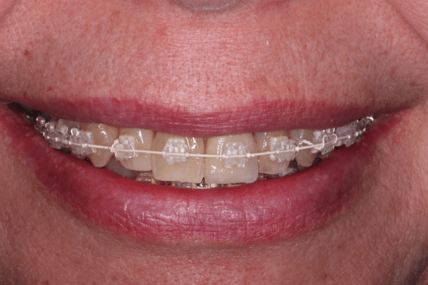 Six Month Smiles March 2015