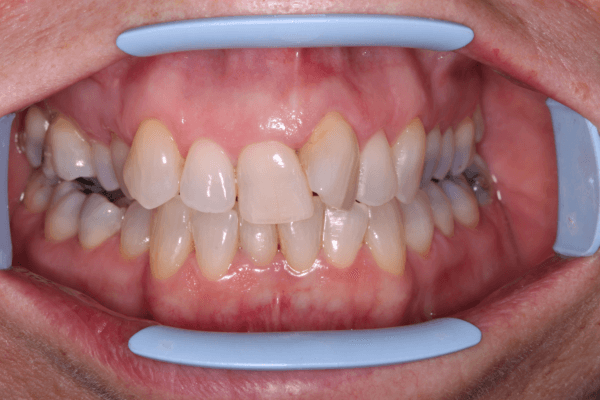 Invisalign stoke on trent muriel 1