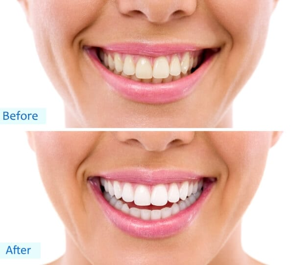 Teeth whitening Stoke on Trent