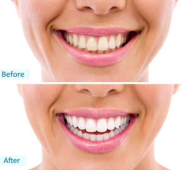 Teeth whitening Stoke on Trent