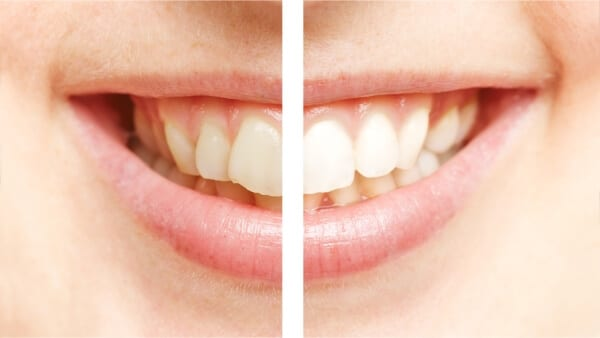 Teeth Whitening contrast