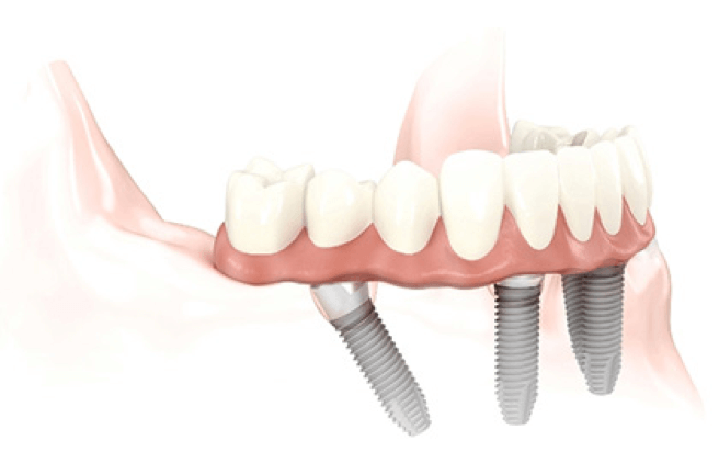 All on 4 - Dental Implants in Stoke on Trent