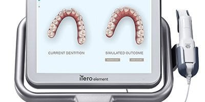 iTero Free Invisalign Smile Assessment