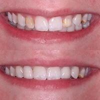 crowns and whitening before and after