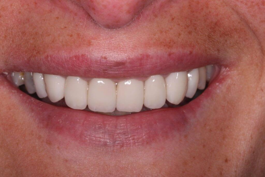 Dental Crowns After