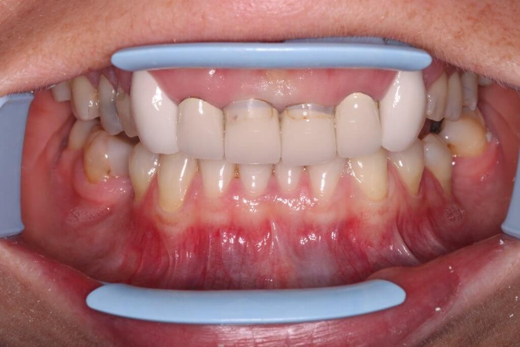 Dental Crowns Before 2