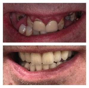 all on 4 or same day teeth
