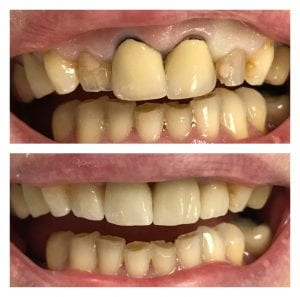 before and after crowns